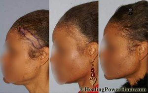 Hair Growth and Repair Supplement - THAT WORKS