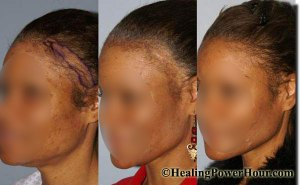 Hair Growth and Repair Supplement